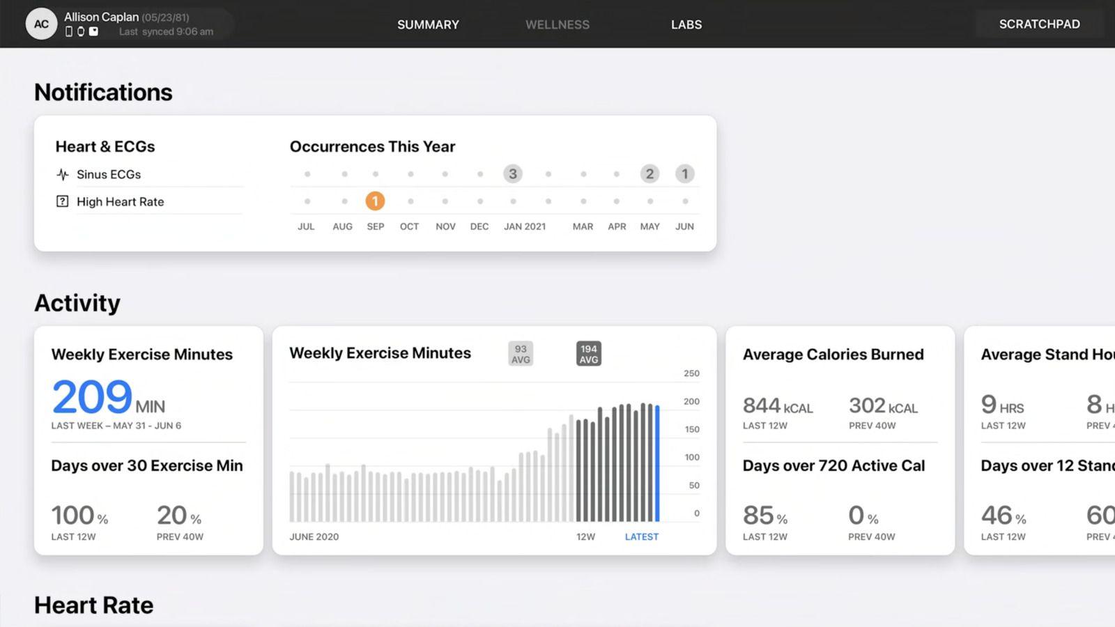 اپل از قابلیت هایی مانند (Walking Steadiness)،(Trends)، (Lab results) و به اشتراک گذاری وضعیت سلامتی رونمایی کرد